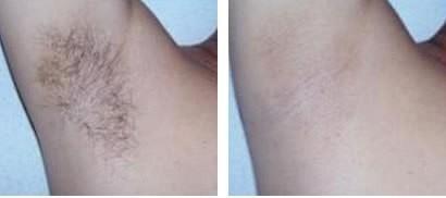 Brazilian Waxing Vorher Nachher Einzigartig Schamhaar Frisuren